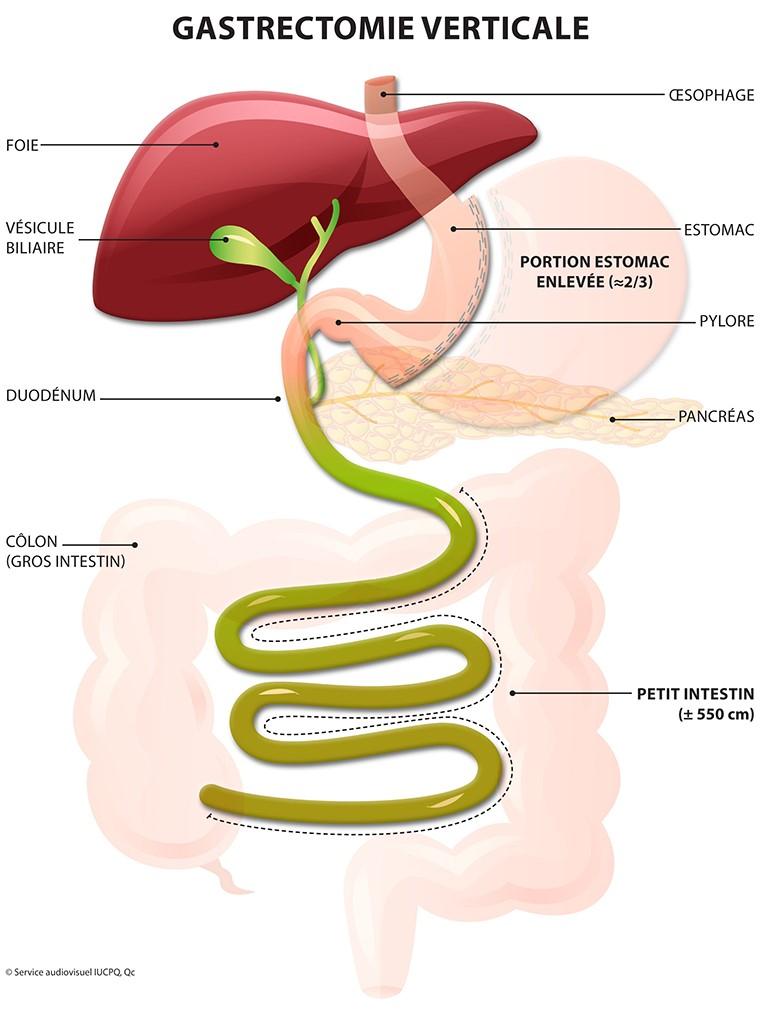 gastrectomie-verticale